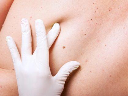 Καρκίνος δέρματος